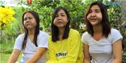 3 cô gái bị biến dạng mặt nghiêm trọng vì ham làm đẹp bằng phương pháp tiêm filler giá rẻ