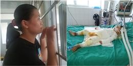 Cháu bé 18 tháng tuổi bị bỏng 80% cơ thể vì ngã vào nồi nước sôi đang nguy kịch