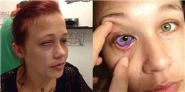 Sự thật của việc cô gái bị chảy nước mắt... màu tím