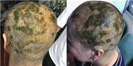 Muốn tóc thành màu xanh lá cây, người phụ nữ phải cạo trọc đầu vì ngồi nhuộm 4 lần trong suốt 7 tiếng