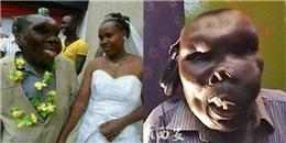 Người đàn ông xấu nhất vùng, vẫn kết hôn 2 lần và có 8 người con