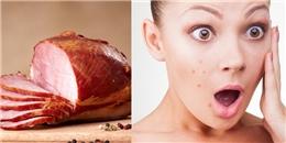 Để giữ làn da sạch mụn, các cô nàng nhớ tránh xa 10 loại đồ ăn này