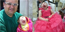 Bé gái không mặt được chẩn đoán không thể sống sót khi chào đời, 9 năm sau điều kỳ diệu vẫn tiếp tục