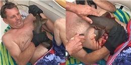 Cá mập nhỏ nhưng liều lĩnh và hung dữ cắn chặt vào bụng thợ lặn, đến chết mới chịu nhả ra