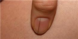 Đừng xem thường, vạch đen nhỏ trên móng tay là dấu hiệu cảnh báo căn bệnh cực kỳ nguy hiểm