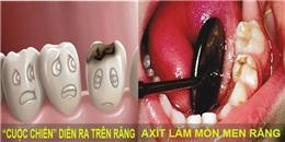Cuộc chiến răng miệng: Sâu răng liệu có phải là con sâu ngoe ngẩy đang đục khoét trong miệng?