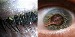 5 loài ký sinh trùng nhìn cực kỳ đáng sợ, nhưng bất thình lình có thể ghé thăm và trú ngụ trên cơ thể bạn đấy