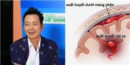 Bạn có biết căn bệnh xuất huyết não mà nghệ sĩ Khánh Nam mắc phải nguy hiểm như thế nào?