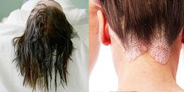 Không muốn sống chung với một đống vi khuẩn thì nhớ đừng để tóc còn ướt rồi đi ngủ nhé!
