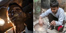 Người đàn ông sống như dị nhân trong phim 'Siêu anh hùng': 'Ăn' điện và phát sáng được bóng đèn