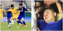 Tắc bóng kinh hoàng, cựu tuyển thủ QG Việt Nam đối mặt án phạt nặng