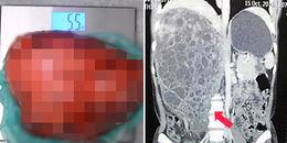 Sốc với khối u thận nặng gấp 50 lần quả thận trong bụng người phụ nữ