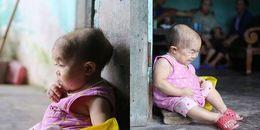 Căn bệnh quái ác khiến cô gái gần 30 tuổi, phải vật lộn đau đớn trong thể xác của đứa trẻ lên 2