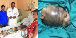 Ca phẫu thuật kéo dài 19 tiếng tách rời cặp song sinh dính liền đầu khiến nhiều người 'nín thở'