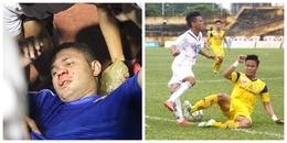 Thiago gãy sống mũi và những chấn thương kinh hoàng bóng đá Việt