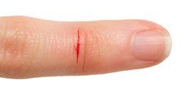 Đã bao giờ bạn tự hỏi rằng tại sao vết cứa do giấy gây ra lại đau đến thế?