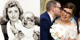 Suốt 14 năm chịu đựng đàm tiếu, cô gái có khuôn mặt biến dạng đã tìm được bến đỗ hạnh phúc