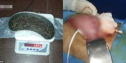 Người đàn ông nuốt 639 chiếc đinh sắt vào bụng, bác sĩ phải dùng đến nam châm hút đinh ra khi mổ