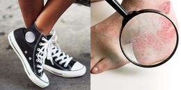 Những mối nguy hại khôn lường của việc mang giày không tất