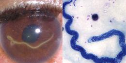 Điểm mặt 5 loài ký sinh trùng rất thích đu bám trên cơ thể người, coi chừng nhất loài số 5