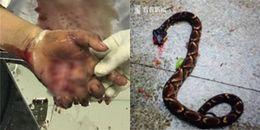 Tò mò xem người ta làm thịt rắn, người phụ nữ bị con rắn cắn 1 phát suýt mất mạng