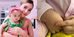 Con gái hơn 1 tuổi bị bỏng, Hồng Quế hối hận, tự trách bản thân vì quá chủ quan