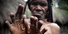 Rùng rợn hủ tục cắt ngón tay để tang người chết của bộ lạc ở Indonesia