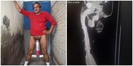 Nóng: Bác sĩ khẳng định người đàn ông có dương vật dài nhất thế giới đã lừa dối mọi người
