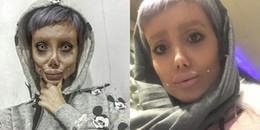 Vạch trần sự thật phía sau hình ảnh cô gái phẫu thuật 50 lần để giống Angelina Jolie