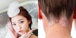 Càng lười tắm, gội đầu vào mùa đông càng giúp bạn tăng cường sức khỏe và tốt cho da