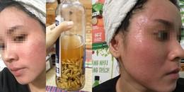 Tin lời bán hàng online về loại rượu thuốc bắc thần dược giúp tái tạo da, cô gái nhận kết đắng