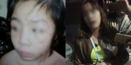 Mẹ đẻ đau xót, khóc cạn nước mắt khi biết con trai bị bố và mẹ kế bạo hành dã man