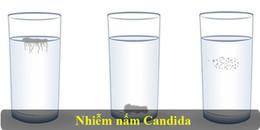 Nhất định phải thử: Kiểm tra cơ thể có bị nhiễm nấm hay không chỉ qua 1 cốc nước trắng