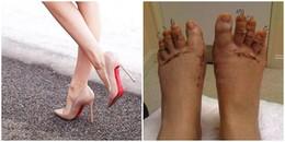 Hãi hùng phương án 'Gọt chân' để mang vừa giày cao gót, có muốn đẹp cũng phải biết sợ chứ nhỉ!
