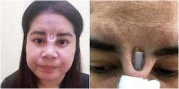 Nâng mũi hỏng, người phụ nữ bị miếng silicon nhô hẳn ra khỏi sống mũi