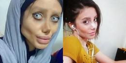Sau tất cả, cô gái 'dao kéo' 50 lần để giống Angelina Jolie đã tiết lộ sự thật về hình ảnh gây sốc