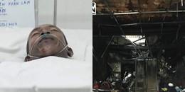Vụ cháy khiến 3 mẹ con tử vong ở Sài Gòn: Em trai nạn nhân tử vong bị bỏng gần 80%