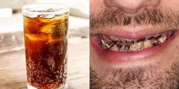 Nghiện đồ uống có ga, chàng trai phải trả giá 'đắt' khi hàm không còn nổi một chiếc răng