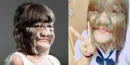 Dung nhan thật của cô gái nổi tiếng mạng xã hội vì mắc hội chứng người sói
