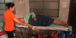 Bác sĩ nhận định về thanh niên bị mảnh sứ cắt mông sâu đến tận xương cùng do ngồi xổm khi đi vệ sinh