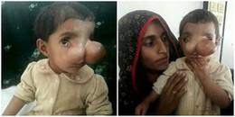 Em bé đáng thương và câu chuyện chiếc mũi voi dị dạng khiến mọi người xa lánh