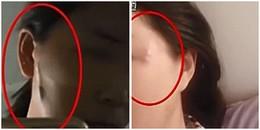 Ham phẫu thuật thẩm mỹ giá rẻ, người phụ nữ bị nổi nhiều cục u dài như con giun trên mặt