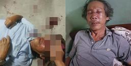 TPHCM: Vào chung cư thăm con, người đàn ông bị bảo vệ đánh đổ máu đến phải nhập viện