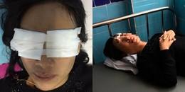 Quảng Bình: Mẹ chồng tạt axit vào mặt con dâu đã tử vong tại nhà riêng