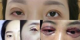 Kinh hoàng biến chứng sau khi nhấn mí: mặt bị biến dạng, không thể nhắm mắt vĩnh viễn