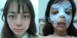 Trải nghiệm 'kinh hoàng' của cô gái Đà Lạt sau khi phẫu thuật nâng mũi sẽ làm bạn phải giật mình