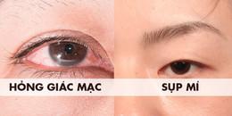 Đừng ham gắn mi giả vì chúng có thể khiến bạn mắc các bệnh nguy hiểm về mắt