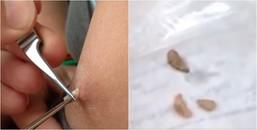 Clip nặn mụn hết thời rồi, nặn ra 'ấu trùng' mới thực sự giúp người xem giải tỏa stress 'tột độ'
