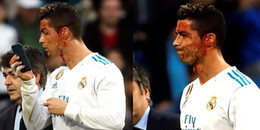 Đổ máu sau pha ghi bàn, Ronaldo vẫn không quên chăm chút nhan sắc