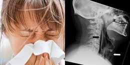 Cảnh báo: Chớ dại mà nhịn hắt xì vì bạn có thể bị xé rách cổ họng hoặc tử vong chỉ trong tích tắc